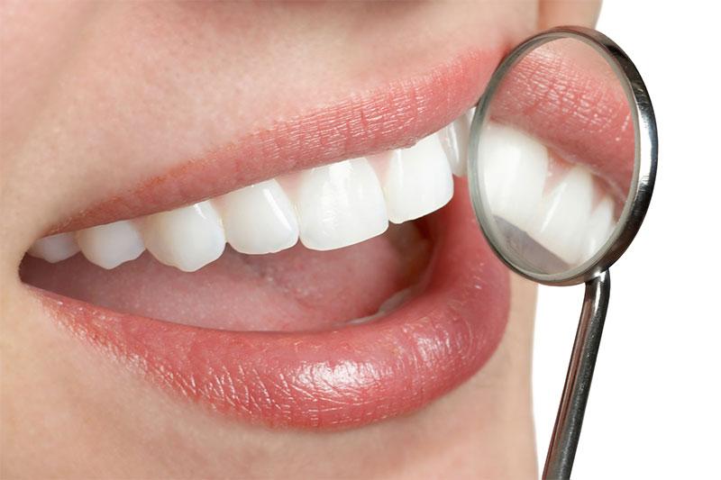Rapid Smile Dental Group Dental Offer
